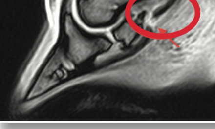 MRI: Unlocking the Mystery of Navicular Disease